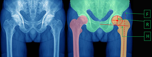 Esta tecnología ayuda a automatizar la medición de huesos y cartílagos.