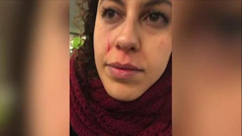 El rostro de Lihi Aharon después del ataque