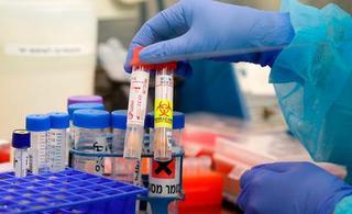 Kits de prueba de coronavirus en el Hospital Ichilov en Tel Aviv