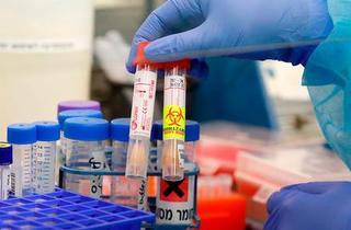 Investigación de coronavirus en el Hospital ichilov de Tel Aviv.