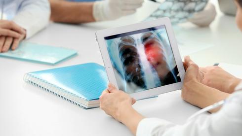 Un nuevo estudio demuestra que se puede tratar a los pacientes en estadio 4 de la enfermedad.