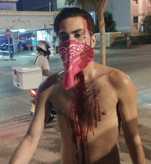 Uno de los manifestantes heridos en la protesta.