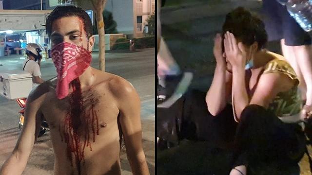 Manifestantes en contra del gobierno tras haber sido golpeados por supuestos seguidores de Netanyahu el martes a la noche en Tel Aviv.
