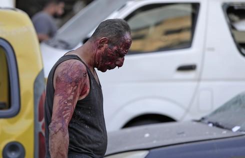 Hombre cubierto de sangre camina por las calles de Beirut luego de la explosión.