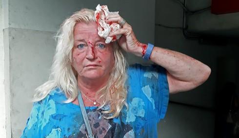 Mujer herida luego de la explosión en Beirut.