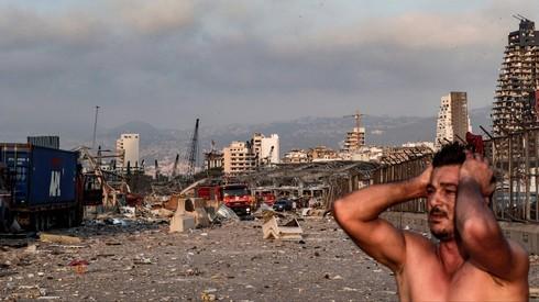 Los hospitales israelíes abren sus puertas a los heridos del Líbano.