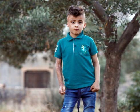 Ahmed Dawabsheh sufrió graves quemaduras en el ataque en el que murieron sus padres y su hermano.