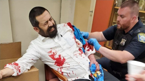 Rabino apuñalado en Boston en un presunto ataque antisemita.