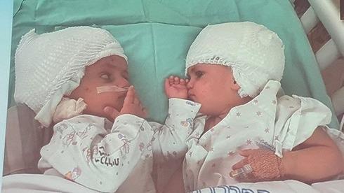 Las hermanas pueden verse una a la otra por primera vez tras la exitosa cirugía en el Centro Médico Soroka.