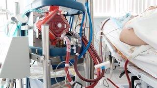 Soporte vital conocida como ECMO (oxigenación por membrana extracorpórea, por sus siglas en inglés)